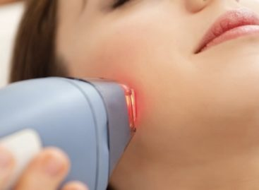 Disappearance of unwanted hair with impeccable cure of Laser Hair Removal