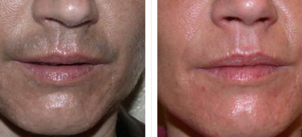 Keep male's cheek hair free with laser treatment